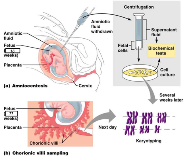 Amniocenteza2