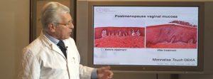 Laserska fototerapija – Monalisa Touch – kvalitetna promjena u životu žene