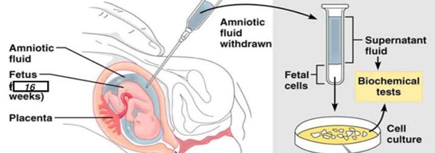 Amniocenteza ili biopsija resica posteljice (CVS)